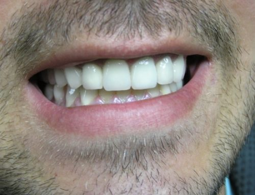 Metalokeramičke krunice – potpuni preobražaj osmeha