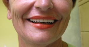 Pacijentkinji je ugrađeno 6 Straumann zubnih implantata (naslovna slika) a zatim izrađen m etalokeramički most od 12 krunica