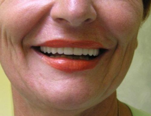 Kako su zubni implantati promenili moj život