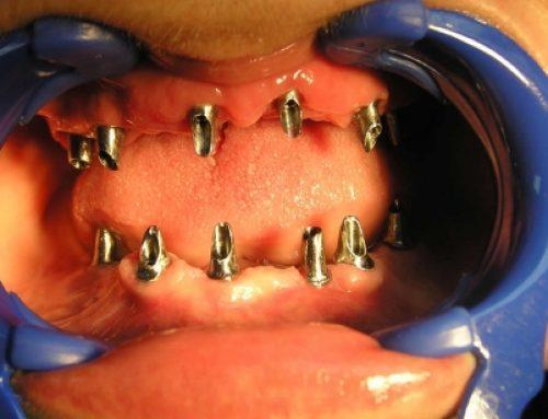 Zubni implantati – treća generacija zuba