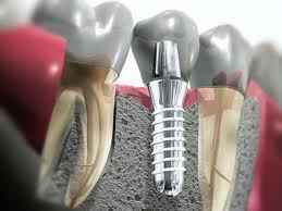 Dentalni implant