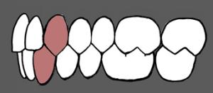 Normalan zagrižaj i raspored zuba
