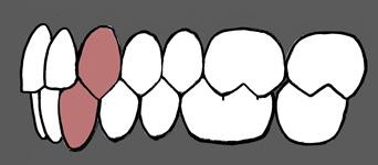 http://www.dentalpetrovic.com/wp-content/uploads/2013/06/Buccal-Occlusion-Class-1.jpg