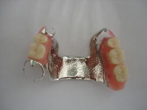 Gornja vizil proteza