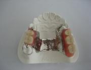 vizil proteza