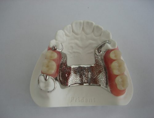 Skeltirana (vizil) proteza