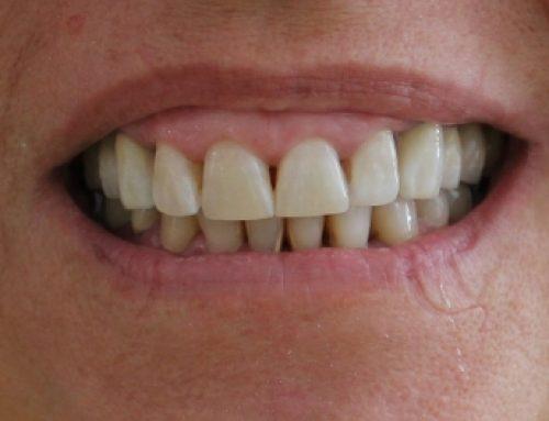 Protetsko lečenje parodontopatije – metalokeramički mostovi