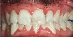 Zapaljenje desni (gingivitis) - otečene crvene desni, krvare na najmanji dodir