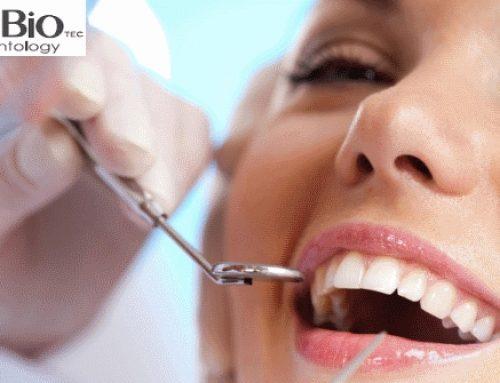 AlphaBio zubni implanti-kvalitet po pristupačnoj ceni