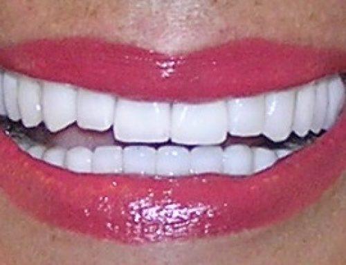 Hollywood smile sa zubnim implantima