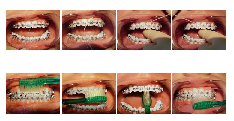 Saveti za oralnu higijenu sa fiksnom protezom