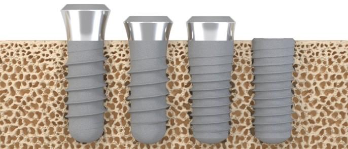 Najkvalitetniji zubni implantati