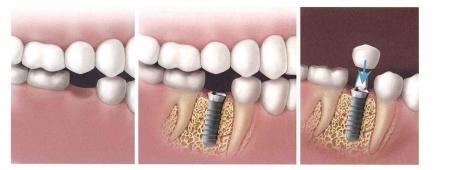 Izrada nadoknada na zubnim implantatima